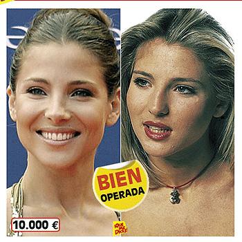 Elsa Pataky Antes Y Después Humanamente
